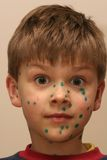 Boy with Green Dots. A boy with green dots - a medication used in case of being ill in chickenpox stock image