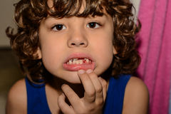 Boy has lost his first tooth Stock Images