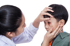 Boy with an injured eye. Little asian boy with an injured eye. Doctor examining and first aid a patient injured on left eye bruise. Studio shot. On white Stock Photography