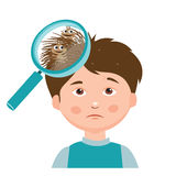 Boy with lice. Magnifying glass close up of a head. Royalty Free Stock Image