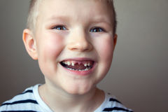 Boy missing milk teeth Stock Photography