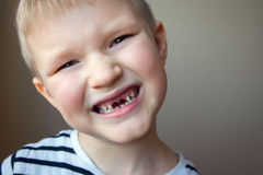 Boy missing milk teeth. Young boy smiling, showing off his first missing milk tooth teeth, close up portrait. Childhood healthcare, healthy changing teeth Stock Images
