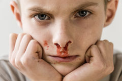 Boy with Nose Bleed Resting Chin on Hands Stock Image