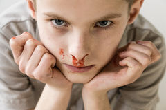Boy with Nose Bleed Staring Up at Camera. Close Up Head and Shoulders Portrait of Young Boy with Bloody Nose Staring Up at Camera with Hands on Chin in Studio Stock Image