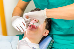 Boy and orthodontist. Guy on the dentist chair while the orthodontist is pulling out a baby tooth with pliers Royalty Free Stock Image