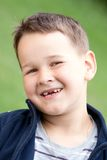 Boy outdoors without upper two teeth Royalty Free Stock Photo