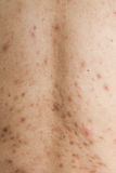 Boy with problematic skin and acne scars. In the back royalty free stock photography