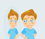 Boy in puberty with acne. Illustration Royalty Free Stock Photos