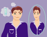 Boy in puberty with acne. Illustration Royalty Free Stock Photo