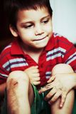 Boy with scraped knees. Sad boy with scraped knees after falling Royalty Free Stock Photos