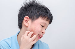 Boy scratching his allergy face Royalty Free Stock Photos