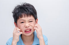 Boy scratching his allergy face Royalty Free Stock Photo
