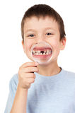 Boy show lost tooth through magnifying glass Royalty Free Stock Photography