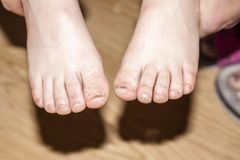 A boy showing his dirty feet Royalty Free Stock Images