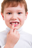 Boy showing his missing milk teeth. Isolated on white background Stock Images