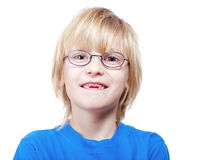 Boy showing missing milk teeth. Portrait of a boy with glasses showing his first missing milk teeth Stock Photography