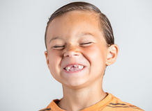 Boy showing missing teeth. Stock Images