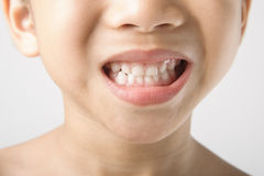 Boy showing teeth Royalty Free Stock Images
