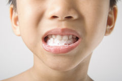 Boy showing teeth Royalty Free Stock Photography