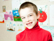 Boy shows missing teeth Royalty Free Stock Photography