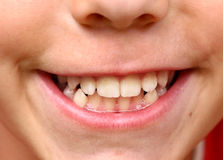 Boy smile with strong white teeth photo Royalty Free Stock Photo