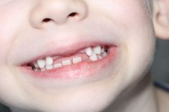 The boy smiles, his milk teeth are visible. Loss of milk teeth royalty free stock photo