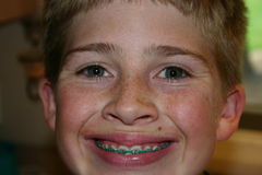 Boy smiling in braces Stock Photos