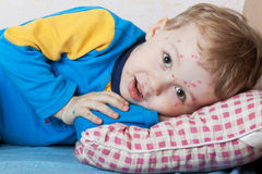 Boy suffers chickenpox. Portrait of a smiling child ailing chickenpox Stock Images