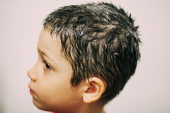 Boy treated for lice Stock Photography