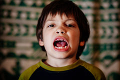 Boy with uneven teeth Royalty Free Stock Photos
