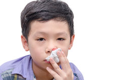 Boy wipe blood from his nose by tissue paper Royalty Free Stock Photo