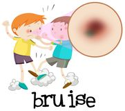 Boys Fighting and Having Bruise. Illustration Royalty Free Stock Photography