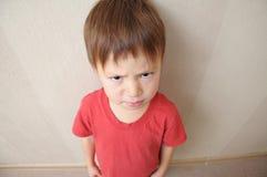 Boze jongen underarm Stock Foto's
