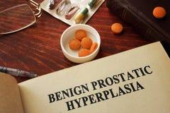 BPH良性前列腺的增生 免版税库存图片
