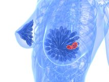 bröstcancer Royaltyfri Foto