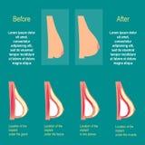 Bröstförstoringen Installationen av implantaten plastikkirurgibröst stock illustrationer