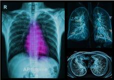 Bröstkorgröntgenstrålar under bilden 3d Royaltyfri Foto