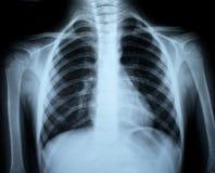 bröstkorgröntgenstråle arkivbilder