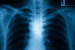 Bröstkorgröntgenstråle Arkivfoto