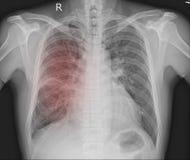Bröstkorgröntgenstråle en årig man 54 Arkivbilder
