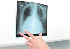 Bröstkorgröntgenstråle till negatoscope. Arkivfoton