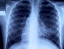 bröstkorgradiography arkivfoton