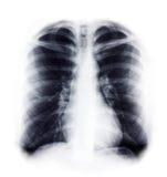 bröstkorgstråle x Arkivfoto