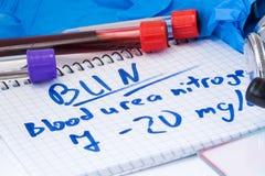 BRÖTCHEN- oder Blutharnstoffstickstofflabor in den grundlegenden metabolischen Testlaboratorium-Reagenzgläsern mit Blut, Stethosk Lizenzfreies Stockbild