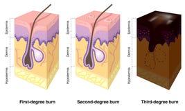 brûlures étiquetées peau Photos libres de droits