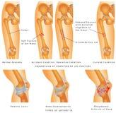 Brüche des Schenkelbeins Stockfotos