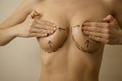 Brüste mit Chirurgielinien 8 Stockfotos