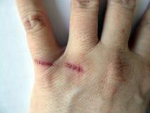 Braço humano com as cicatrizes das queimaduras na pele imagem de stock