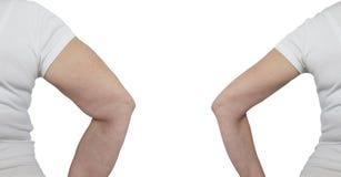 Braccio della donna prima e dopo perdita di peso fotografie stock