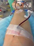 braccio di giovane volontario quando donano sangue in ospedale Fotografie Stock